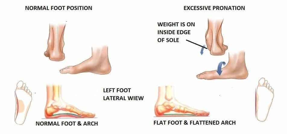 Best Basketball Shoes for Flat Feet in 2020